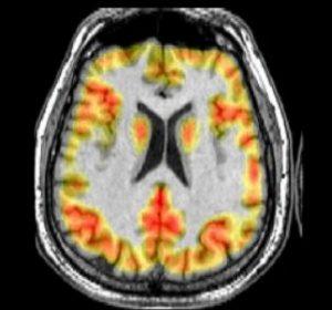 ترکیب تصویر با استفاده از تبدیل IHS